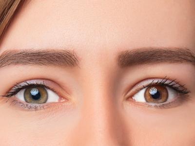Como alguém nasce com olhos multicoloridos?